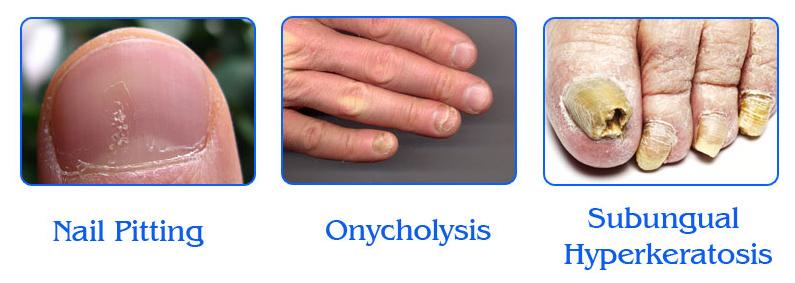 Nail Psoriasis Symptoms