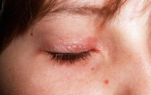 Inverse Psoriasis