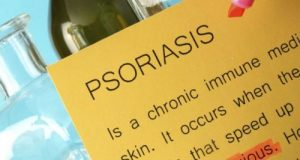 Psoriasis causes