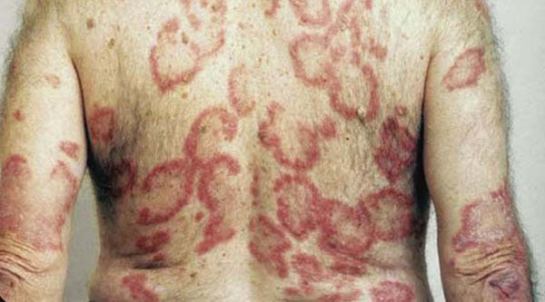 annular psoriasis pictures