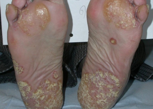 foot psoriasis pictures