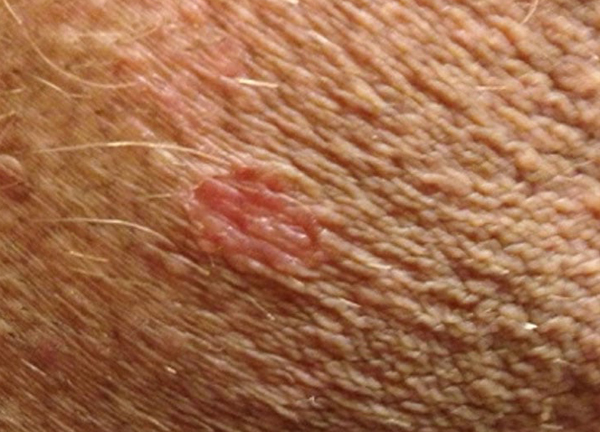 psoriasis in genital area pictures