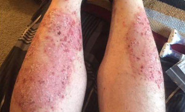 psoriasis pictures on legs