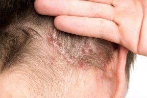 psoriasis scalp pictures mild