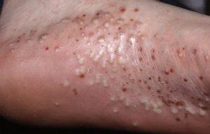 pustular psoriasis pictures feet
