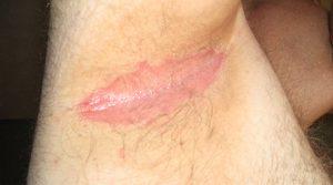 underarm psoriasis pictures