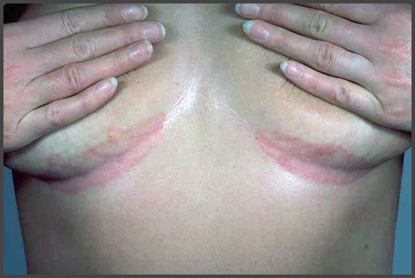 Inverse psoriasis under breasts pictures