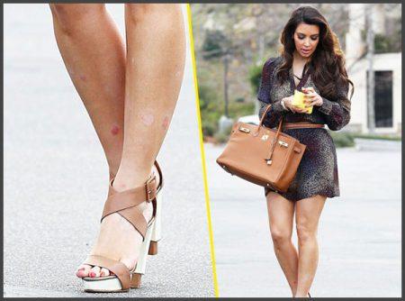 Kim kardashian psoriasis picture