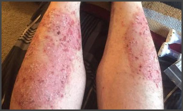 Pictures of psoriasis on legs