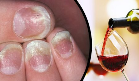 Psoriasis and alcohol