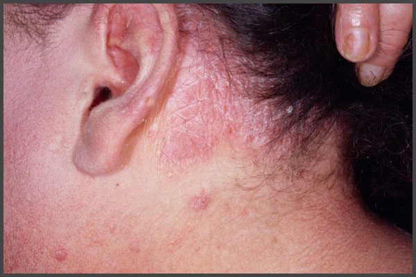Psoriasis behind ears pictures
