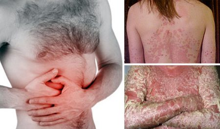 Psoriasis of the liver