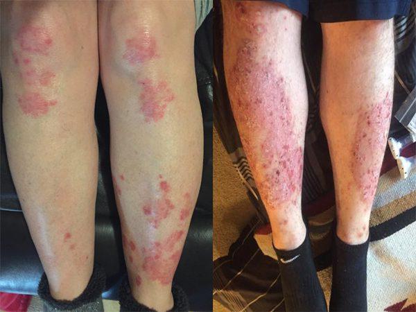 Psoriasis on legs – Causes, Symptoms & Treatment ...
