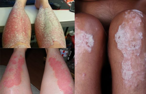 Psoriasis on legs treatment