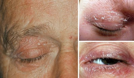 Psoriasis on the eyelids