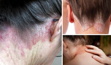 Psoriasis on the neck