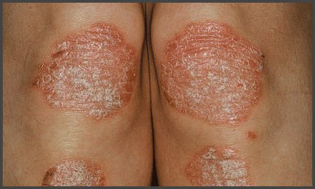Psoriasis pictures on knees