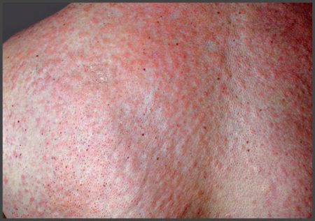 Pustular psoriasis pictures