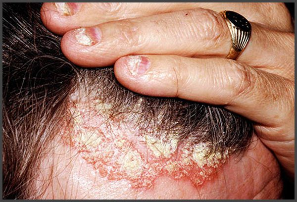 Scalp psoriasis pictures
