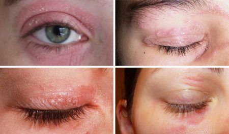 Treatment Psoriasis eyelids