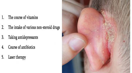 Treatment of psoriasis in the ears