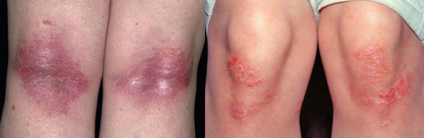 Treatment of psoriasis on the knees