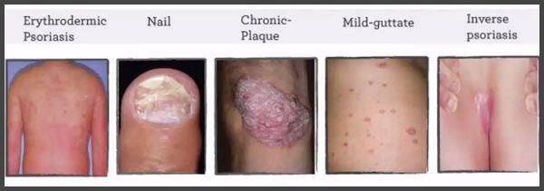 Types of psoriasis pictures