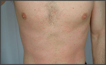 Early stages of psoriasis pictures
