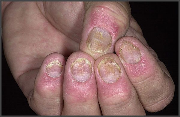 Finger nails psoriasis pictures | Psoriasis expert