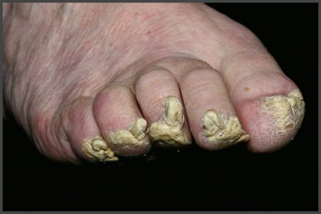 fingernails psoriasis pictures