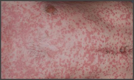 guttate psoriasis symptoms pictures