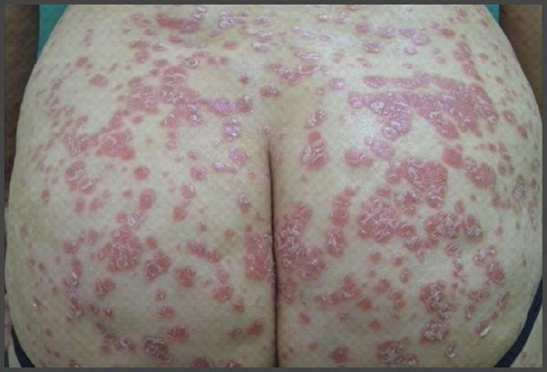 inverse psoriasis buttocks pictures