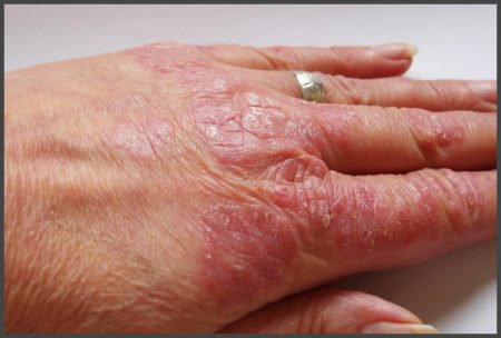 mild psoriasis on hands pictures