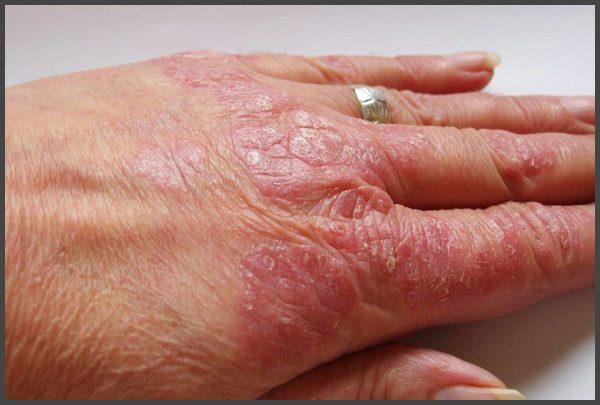 mild psoriasis on hands pictures