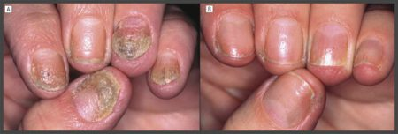 nail psoriasis pictures and treatments