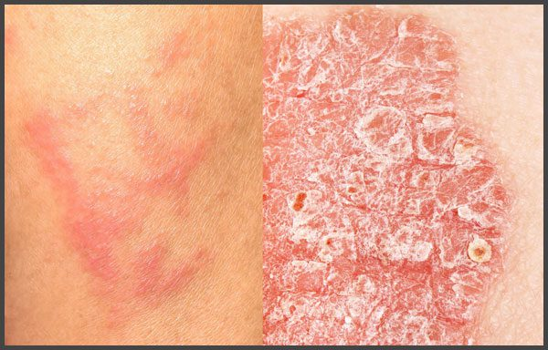Pictures of eczema and psoriasis