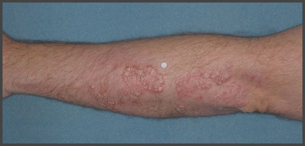 pictures of plaque psoriasis on arms