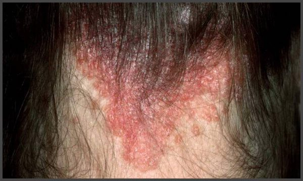 pictures of plaque psoriasis on scalp