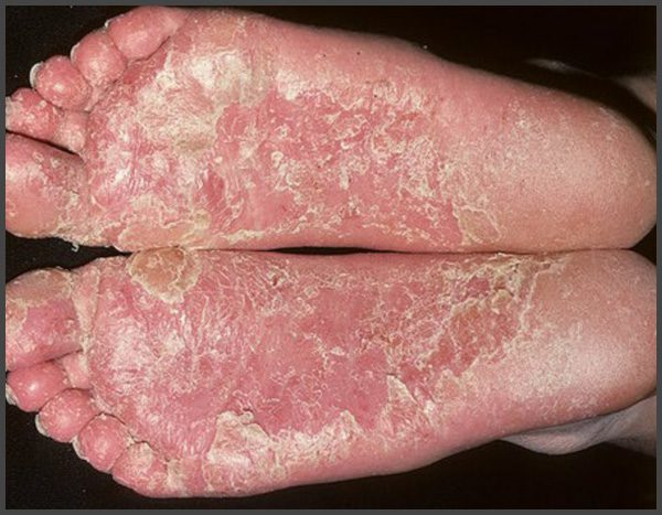 pictures of psoriasis on bottom of feet