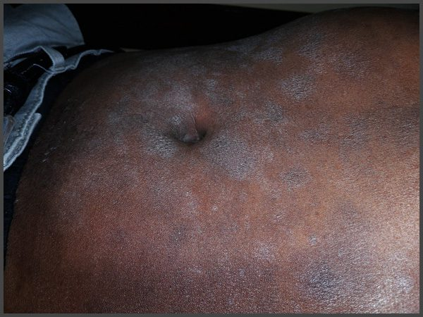 pictures of psoriasis on dark skin