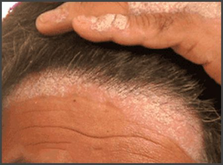 pictures of psoriasis on face and scalp