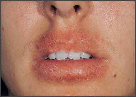 pictures psoriasis around mouth