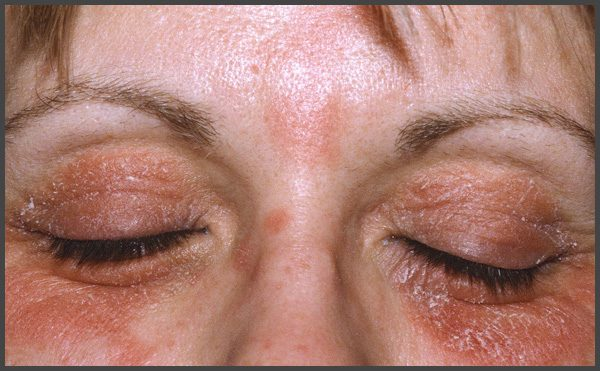 psoriasis around eyes pictures
