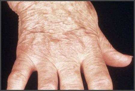 Psoriasis arthritis pictures