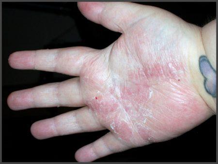 psoriasis hands feet pictures