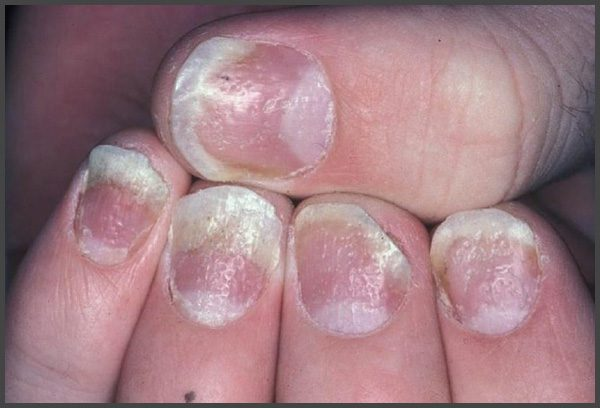 psoriasis nail pitting pictures