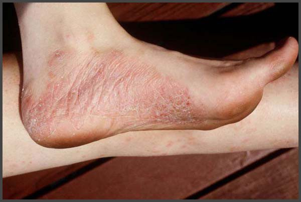Psoriasis on ankles pictures