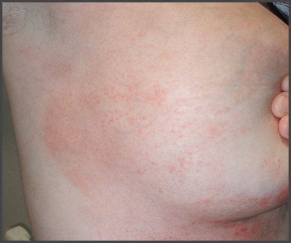 psoriasis on areola pictures