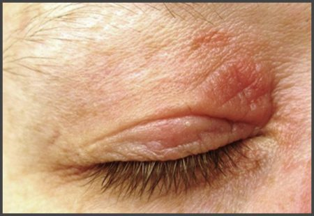 psoriasis on eyelids pictures