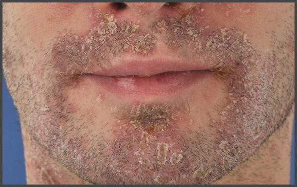 psoriasis on face pictures